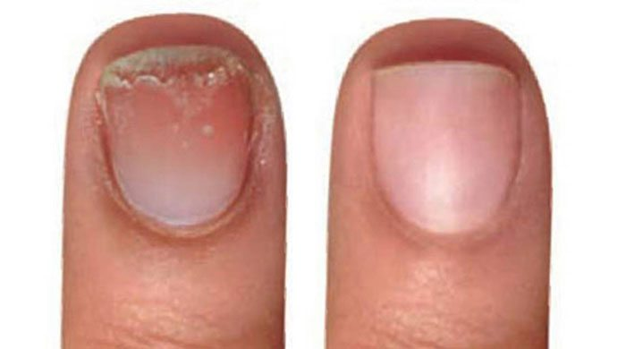 Nails Before And After